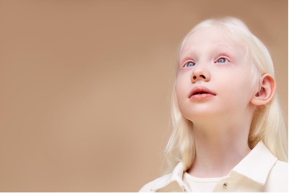 """Dünya Albinizm Farkındalık Günü'nde """"Beyaz Melekler""""e destek olun"""