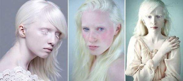 albinizm-001.jpg